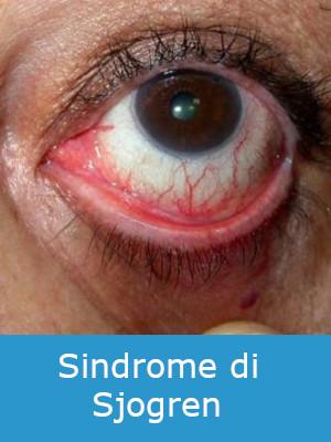 Lesione Simil aftosiche