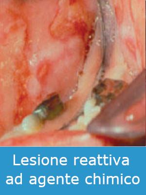 Lesione Lichenoide